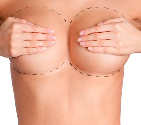Precio de una operacin de aumento de pecho y senos