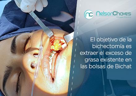 La Bichectomía y sus Beneficios
