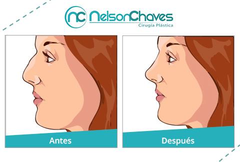 Cirugía de la Nariz - Rinoplastia para modelar imperfecciones en la ...